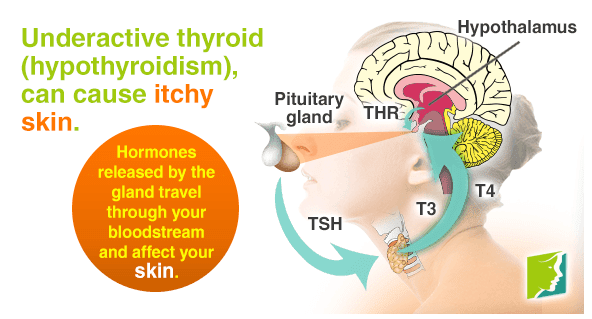 Thyroid Disorders And Dry, Itchy Skin: What Is The Link?