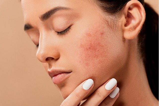 You are currently viewing How to treat adult acne naturally